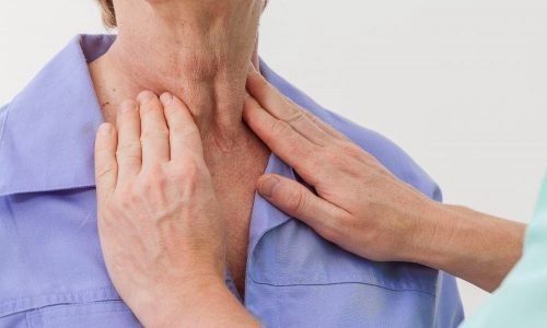 Trào ngược dạ dày gây viêm họng mạn và nổi hạch cổ?