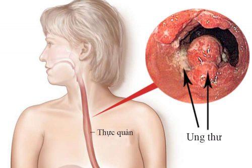 Trào ngược dạ dày thực quản có thể dẫn đến ung thư ?