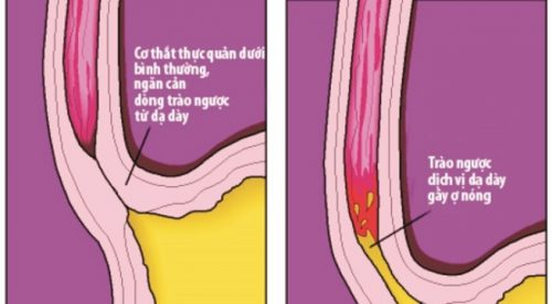 Biểu hiện trào ngược dạ dày có ảnh hưởng tới cơ quan nào?