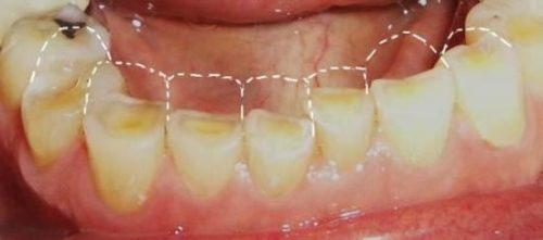 Bệnh trào ngược dạ dày thực quản gây mòn răng