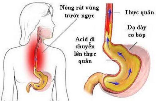 Những triệu chứng trào ngược dạ dày