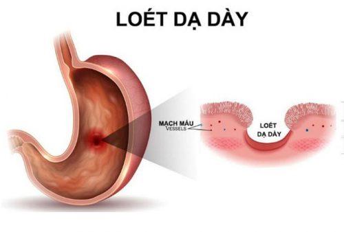 Bệnh lý viêm loét dạ dày