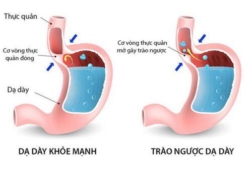 Dạ dày khỏe mạnh và trào ngược dạ dày