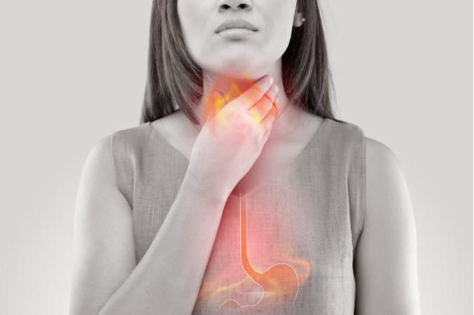 Biểu hiện của nóng dạ dày thực quản
