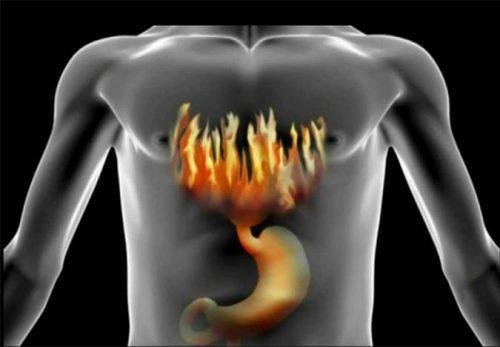 Nóng dạ dày buồn nôn cảnh báo dấu hiệu bạn bị bệnh gì?