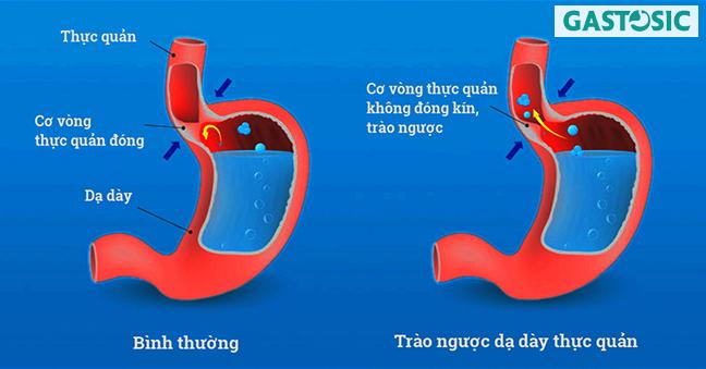 Ợ chua có phải là dấu hiệu của trào ngược dạ dày