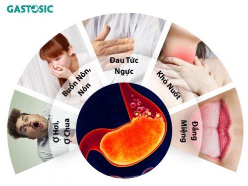 Các triệu chứng của trào ngược dạ dày
