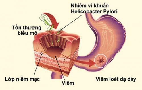 Viêm loét dạ dày