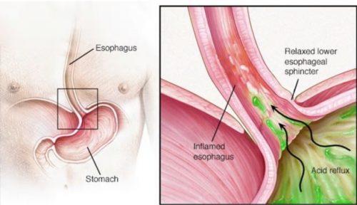 minh họa trào ngược dạ dày