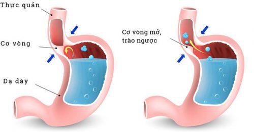 Minh họa bệnh trào ngược dạ dày