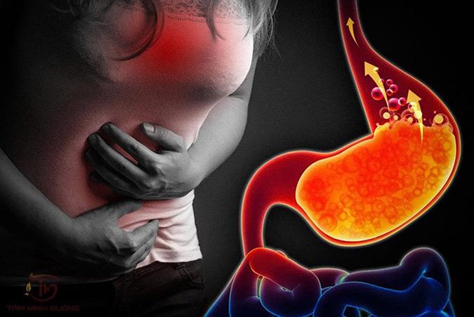Trào ngược dạ dày nguyên nhân gây ợ hơi buồn nôn
