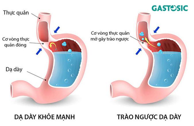 Trào ngược dạ dày nguyên nhân phổ biến gây ăn không tiêu ợ chua