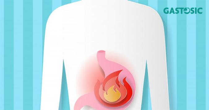 Trào ngược dạ dày nguyên nhân phổ biến nhất gây ra chứng ợ hơi kéo dài.