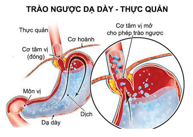 Trào ngược dạ dày thực quản nguyên nhân gây ợ nóng nôn ra máu