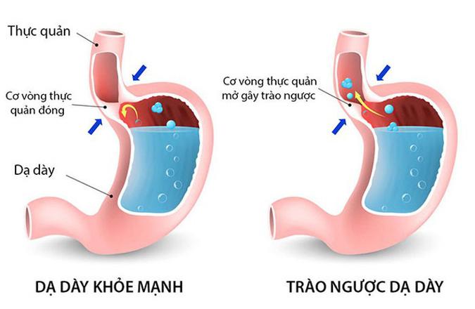 Nguyên nhân gây ợ nóng nôn ra máu là do trào ngược dạ dày