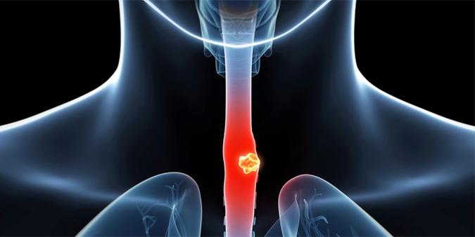 Ợ hơi sau khi ăn có thể dẫn đến ung thư thực quản