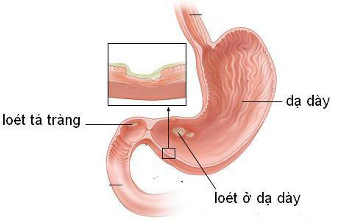 Viêm dạ dày nguyên nhân gây ợ nóng nôn ra máu