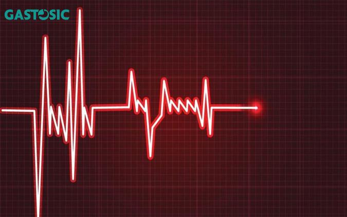 Kiểm tra bằng điện tâm đồ để biết tim đập nhanh hay không