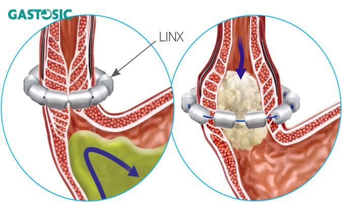 Phẫu thuật để tăng cường cơ vòng thực quản dưới Linx