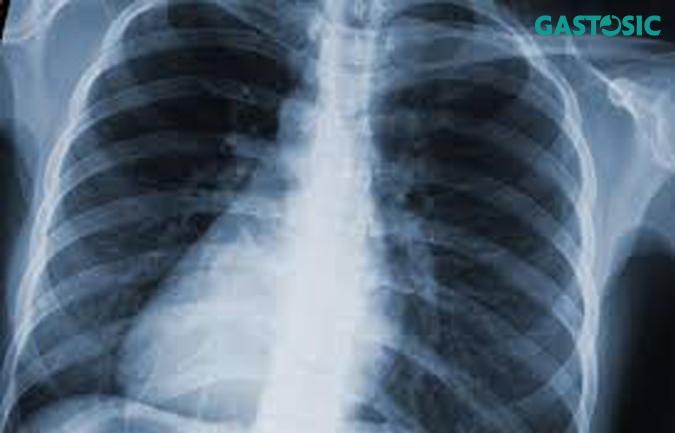 Chụp X - quang là phương pháp chẩn đoán nhanh chóng và tiện lợi