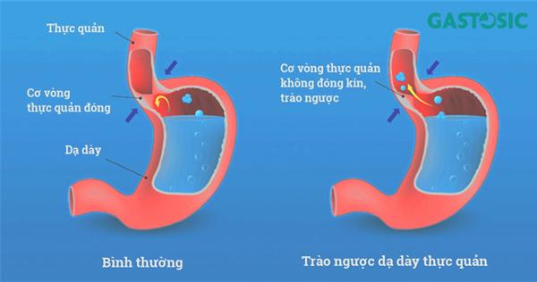 Hình ảnh dạ dày bình thường và trào ngược dạ dày
