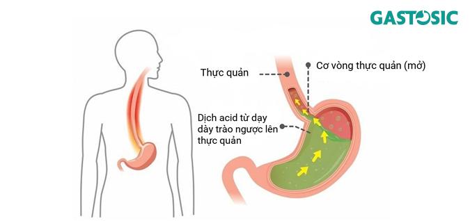 Trào ngược dạ dày gây bệnh lý ợ chua buồn nôn