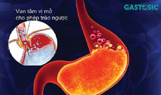 Các cấp độ của trào ngược dạ dày