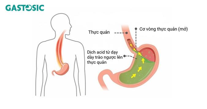 Trào ngược làm cho dịch dạ dày di chuyển lên thực quản