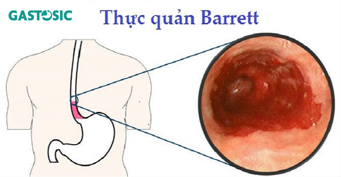 Barrett thực quản