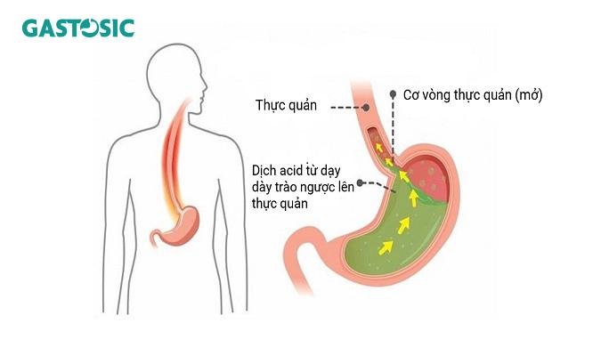 Cơ chế trào ngược dạ dày