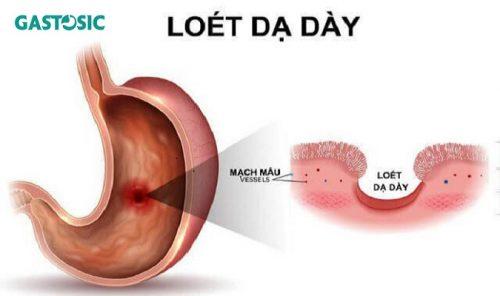 Ợ chua đau bụng là bệnh gì? Nguyên nhân cách chữa ra sao?