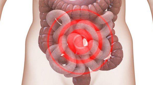 Ợ hơi đau bụng dưới có thể do chứng ruột kích thích