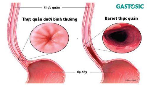 Trào ngược dạ dày độ C – Cảnh báo nguy cơ ung thư thực quản