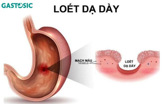 Đau phía trên bên trái do viêm loét dạ dày