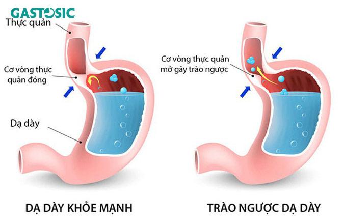 Bệnh trào ngược dạ dày nặng là nguyên nhân trào ngược dạ dày lên mũi