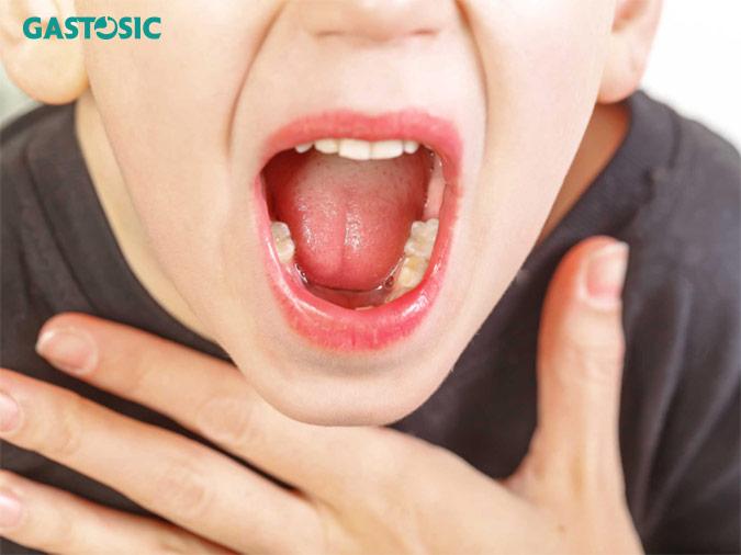 Trào ngược dạ dày gây viêm họng và phù nề họng