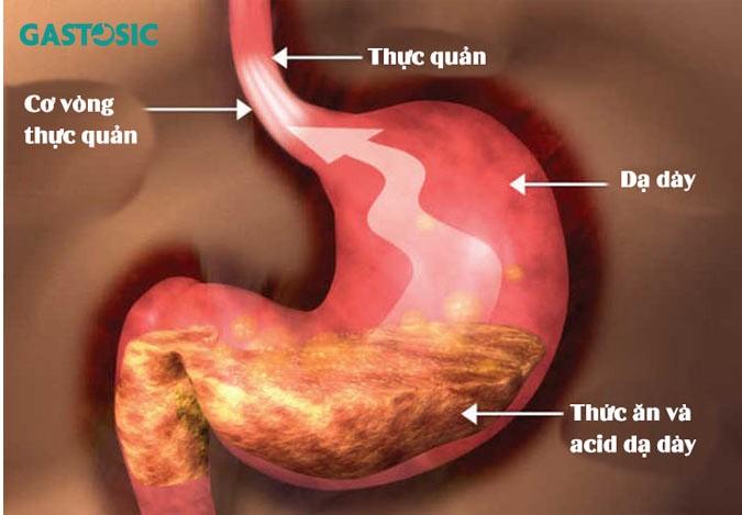 Acid dạ dày vượt qua cơ vòng thực quản trào lên trên