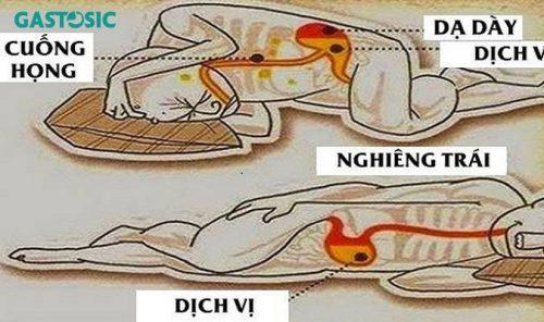 Trào ngược dạ dày nên ngủ như thế nào ?
