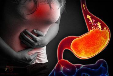 Bệnh trào ngược dạ dày có nguy hiểm không? Có chữa được không
