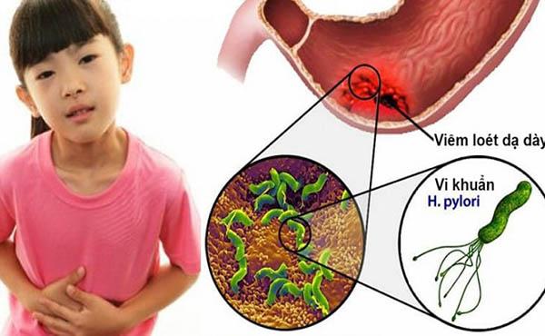 trào ngược dạ dày ở trẻ em có nguy hiểm không